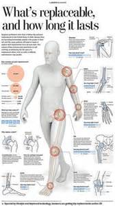 Hip Replacement Surgery Recovery Time Stairs by 1000 Images About Knee Replacement On Pinterest