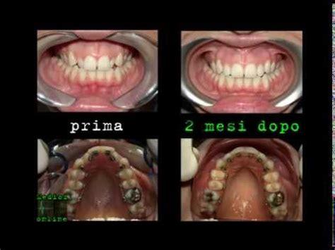 apparecchio interno fisso ortodonzia linguale apparecchio fisso invisibile