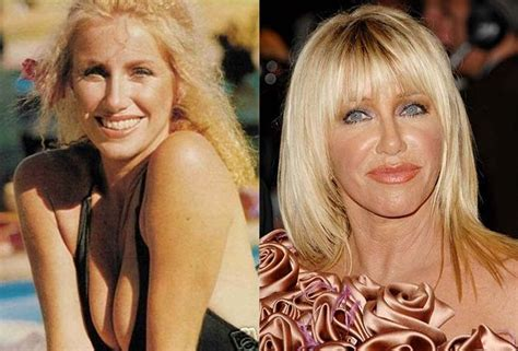 suzanne somers celebrity plastic surgery 24 suzanne somers plastic surgery celebrity plastic surgery