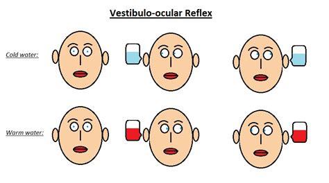 vestibulocochlear reflex vestibulo ocular reflex wikilectures
