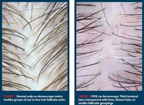 christmas tree pattern alopecia christmas tree pattern female hair loss female pattern