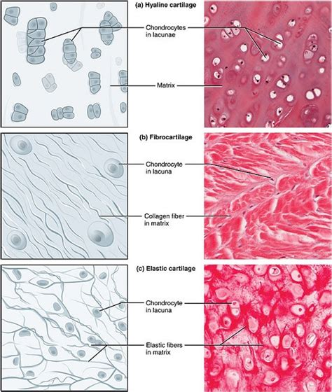 cartilage diagram difference between hyaline cartilage and elastic cartilage