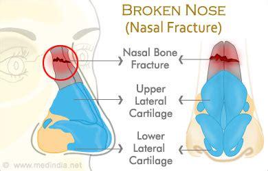 broken nose diagram broken nose nasal fracture age groups and types
