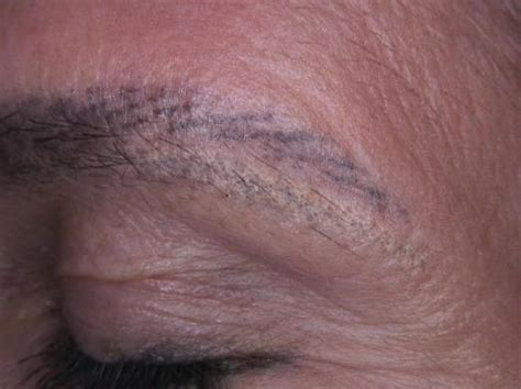 tattoo removal zurich houston s premium tattoo removal clinic on feedspot rss feed