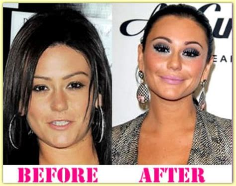 jenni jwoww before and after plastic surgery breast jwoww abraham plastic surgery before and after