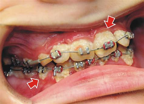 with braces how do you treat white spots after braces ask an orthodontist