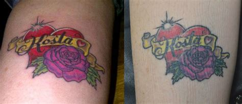how to remove a new tattoo getting a cover up in toronto how does