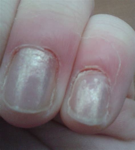 infected fingernail bed finger nail infection remedies for skin