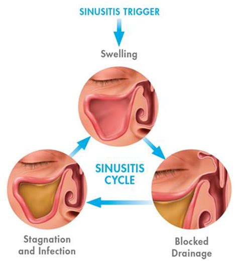 sinus infection mucus color sinusitis relief with balloon sinuplasty in arizona