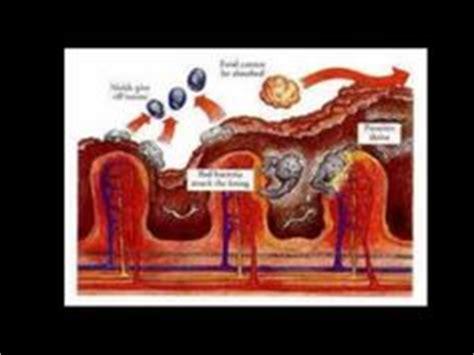 Liver Detox Diatomaceous Earth by Parasite Pals On Parasite Cleanse Liver
