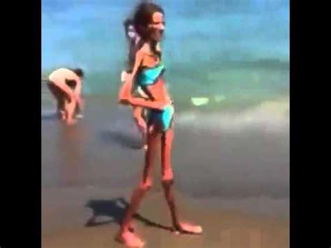 imagenes graciosas de gente muy flaca increible mujer en los huesos realmente delgada really