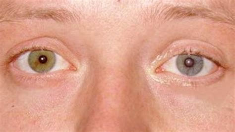 horner s horner s symptoms causes treatment pictures diagnosis
