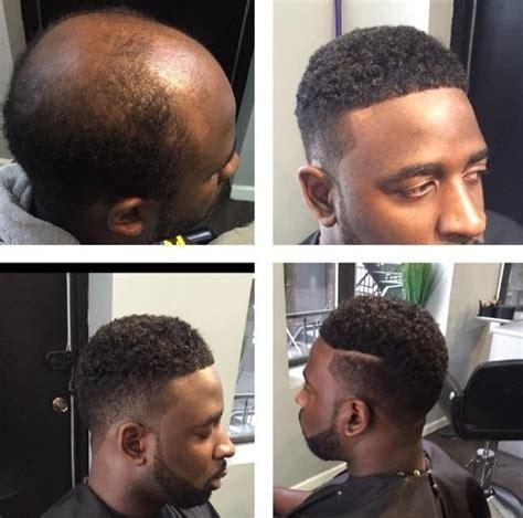 hair weaves for balding men man weaves offer cover for balding men cash for black