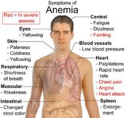 anemia skin color signs and symptoms of anemia