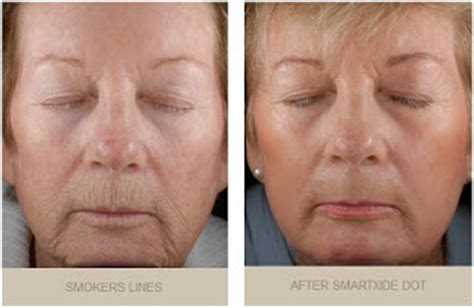 jowls and sagging around mouth treatment sagging jowls hairstyles to flatter short hairstyle 2013