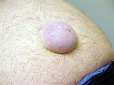 belly button after umbilical hernia surgery car umbilical hernia car