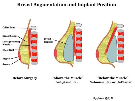 implant and mood swings breast augmentation before and after surgery health 2 0 blog