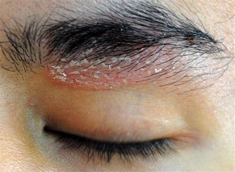 dermatite seborroica testa dermatite seborroica cause sintomi e rimedi tanta salute