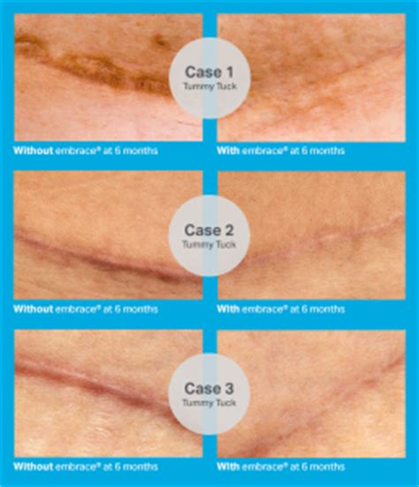 c section scar revision before and after 187 cesarean section scar treatment