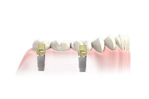 implant supported bridge manhattan nyc center
