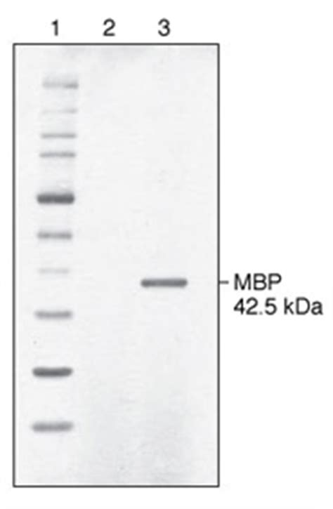 j protein expression purification yeast neb