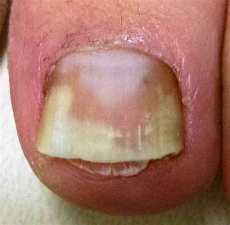 nail separating from nail bed nail separating from nail bed 28 images nails separating from nail bed beautify
