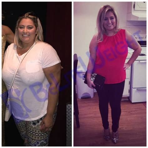 gastric bypass testimonials success stories with before gastric surgery vsg bypass sleeve before after success