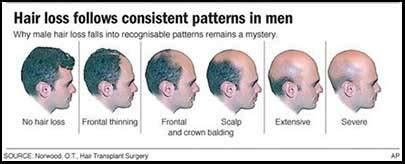 male pattern of hair loss 10 effective things you can do to accept baldness