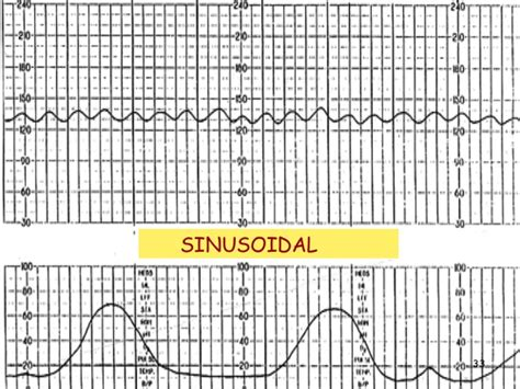 pattern rhythm definition image gallery sinusoidal pattern