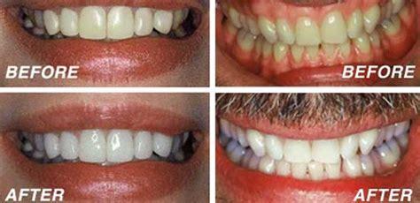 teeth whitening dublin whitening teeth