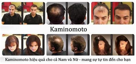Kaminomoto Hair Growth Accelerator 2 Upgrade kaminomoto hair growth accelerator 150ml ขนาดปกต
