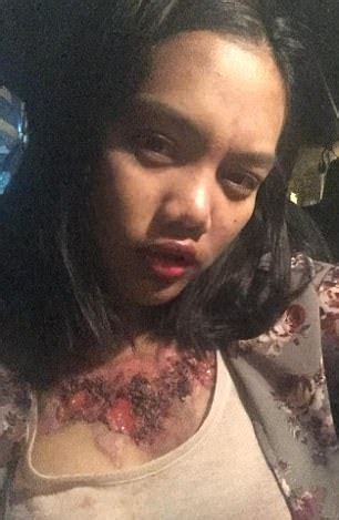 tattoo removal thailand thai student left with horrific scars after removal