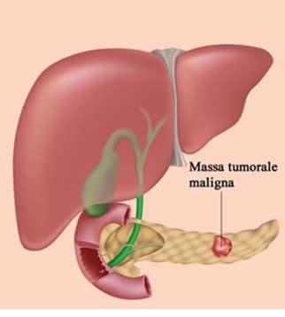 tumore alla testa pancreas tumore al pancreas