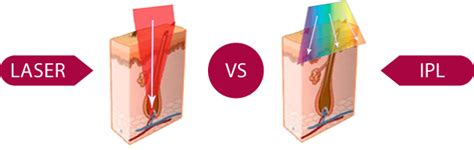 ipl vs diode ipl vs diode laser 28 images laser vs ipl hair removal treatment dubai uae laser vs ipl