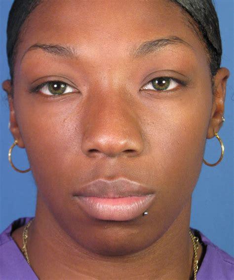 african american african american rhinoplasty