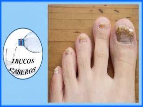 como decorarte las uñas delos pies consejos para eliminar los hongos delos pies enlace de