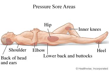 How To Prevent Bed Sores by Preventing Bed Sores Atascadero Assisted Living