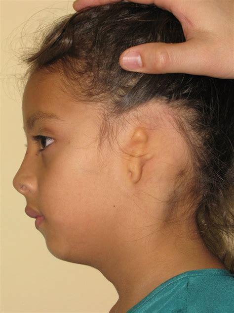 is 66 years old too old to ear bangs microtia atresia richmond ent