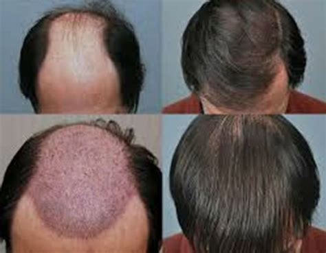 does fue hair transplant work dr vikas panthri best plastic surgeon in laxmi nagar