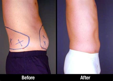male liposuction patient   picture  tumescent liposuction procedure abdominal