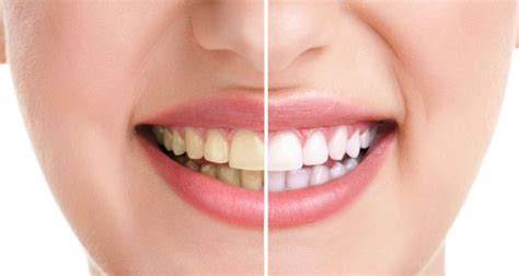 activated charcoal teeth whitening dont   trial