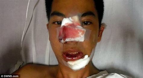 remedy fr cleft chin male model s career is ruined after his face is injected