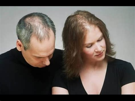 effective hair loss treatment  male  female pattern
