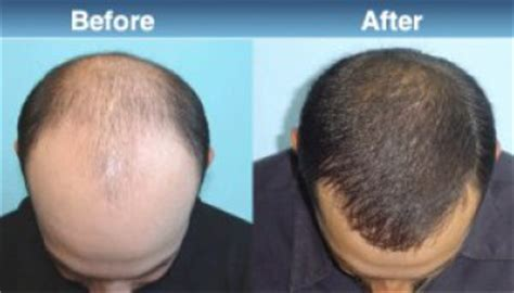 does minoxidil work women before and after does rogaine work for hair loss in men