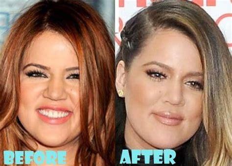 khloe kardashian plastic surgery 2015 khloe kardashian before and after plastic surgery 06