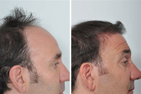 Hair Transplant Center Nyc Hair Transplantations Nyc | hair restoration dr jessica lattman oculoplastic