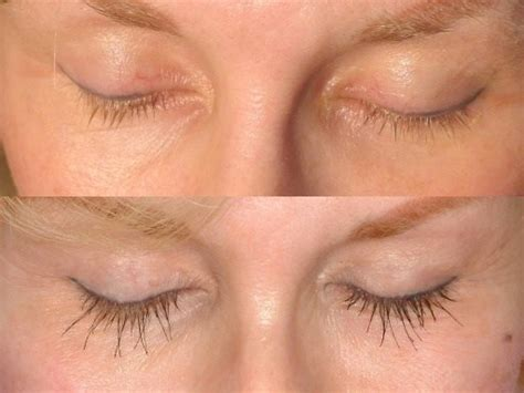 Eyelash Transplant Surgery Becames Popular 2 by Eyebrow Eyelash Transplant Hair Transplant Advice