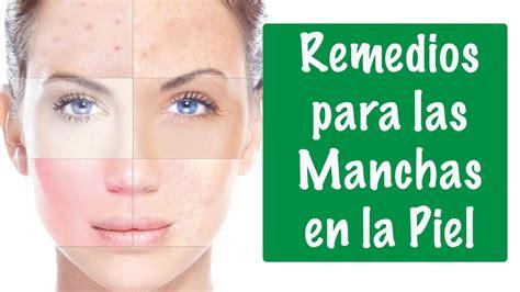 Tratamientos Tratamientos Para Las Manchas | remedios caseros para las manchas en la piel youtube