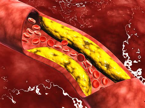 diabete alimenti da evitare e quelli permessi cholesterol may not protect you against attacks