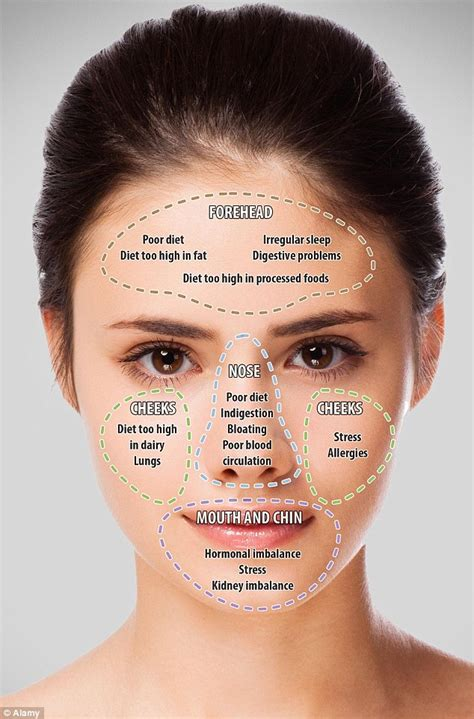 what causes your blind spot map your acne to reveal what the position of your